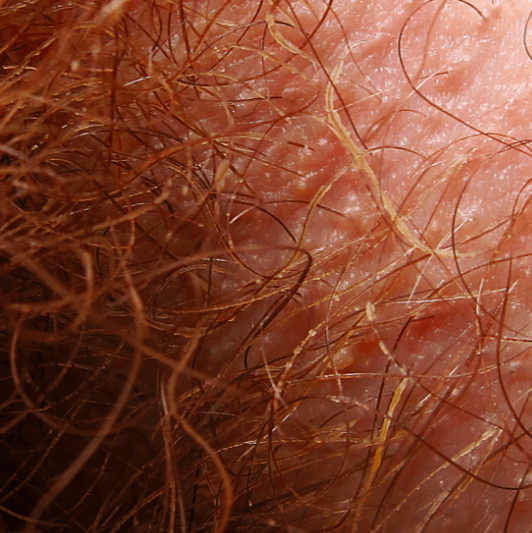 pubic-hair-closeup